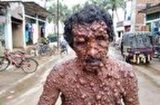 مردی با یک بیماری پوستی نادر