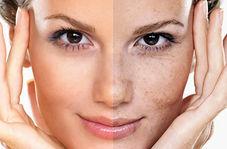 لک های پوستی را جدی بگیرید