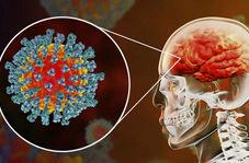 سکته مغزی ۲۵ بیمار مبتلا به ویروس کرونا در بیمارستان شهدای تجریش + فیلم