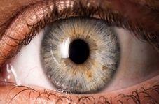 لکههای روی عنبیه چشم ، چه چیزی درمورد سلامتتان می گوید؟