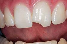 ترمیم دندانهای شکسته با مادهای مخصوص
