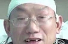 بی دندان شدن جراح چینی در نتیجه خستگی زیاد