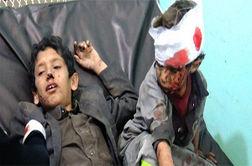 واکنش رشیدپور به حمله ائتلاف سعودی به اتوبوس کودکان یمنی